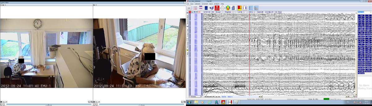 Dual-screenshot: 2 cameras on one screen, 128 channel EEG on second screen