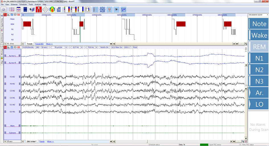 Example of MSLT recording of a narcolepsy patient. The patient is free to move around at times between tests and data are usually not stored at these times. The resulting acquisition consists of 5 separate recordings.