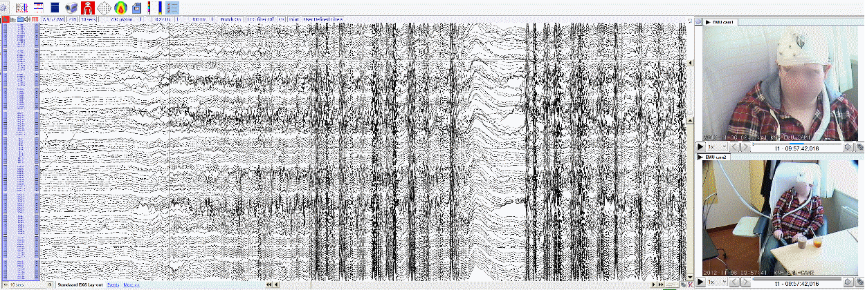 EEG analysis image